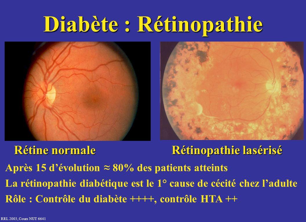 RRL 2003, Cours NUT 6641 Diabète : Rétinopathie Rétine normale Rétinopathie lasérisé Après 15 dévolution 80% des patients atteints La rétinopathie dia