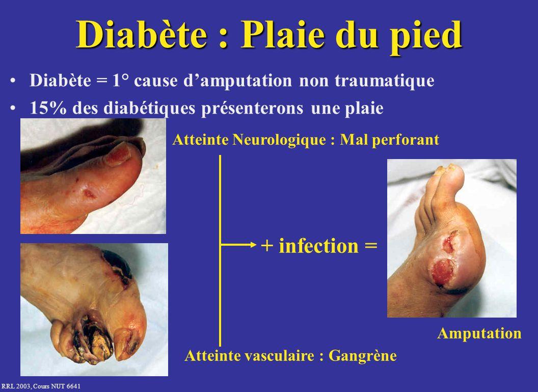RRL 2003, Cours NUT 6641 Diabète : Plaie du pied Diabète = 1° cause damputation non traumatique 15% des diabétiques présenterons une plaie Atteinte Ne