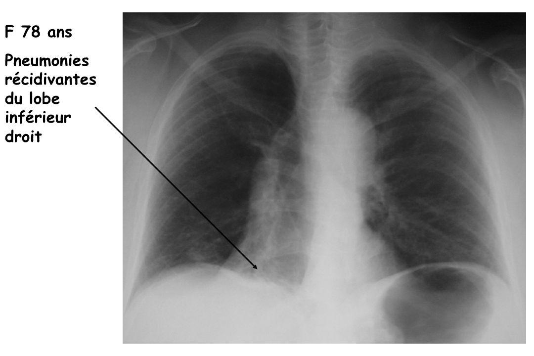 F 78 ans Pneumonies récidivantes du lobe inférieur droit