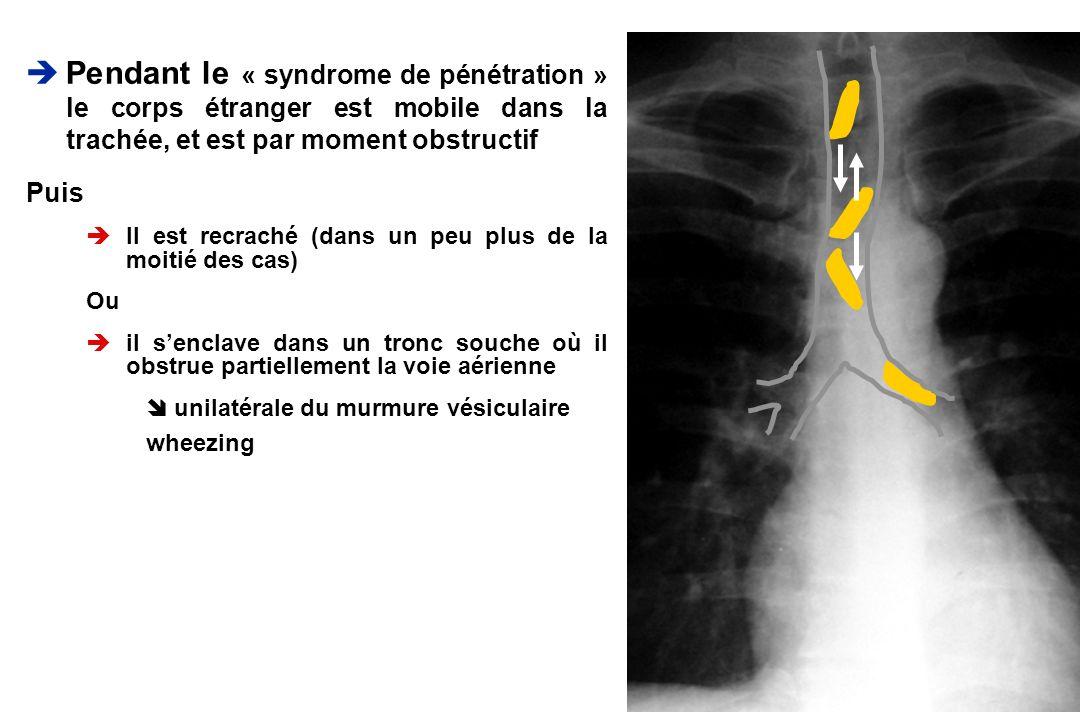 Pendant le « syndrome de pénétration » le corps étranger est mobile dans la trachée, et est par moment obstructif Puis èIl est recraché (dans un peu p