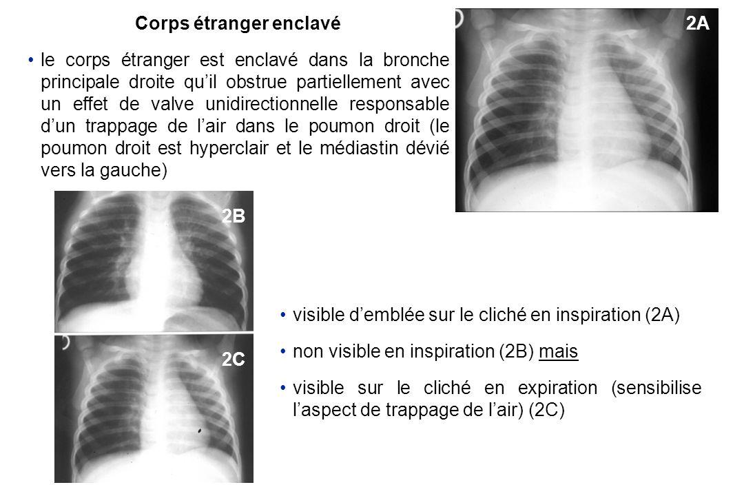 Corps étranger enclavé le corps étranger est enclavé dans la bronche principale droite quil obstrue partiellement avec un effet de valve unidirectionn