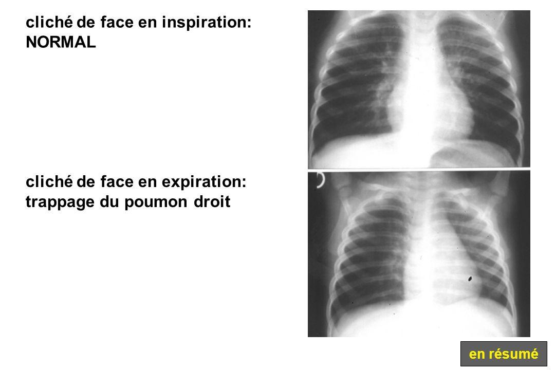 cliché de face en inspiration: NORMAL cliché de face en expiration: trappage du poumon droit en résumé