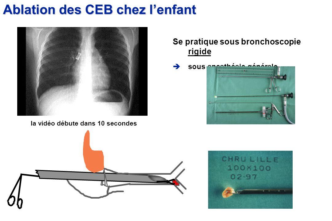 Se pratique sous bronchoscopie rigide sous anesthésie générale Ablation des CEB chez lenfant la vidéo débute dans 10 secondes