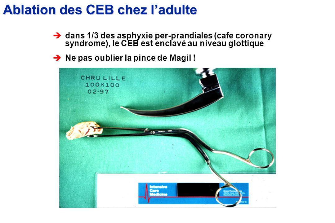èdans 1/3 des asphyxie per-prandiales (cafe coronary syndrome), le CEB est enclavé au niveau glottique èNe pas oublier la pince de Magil ! Ablation de