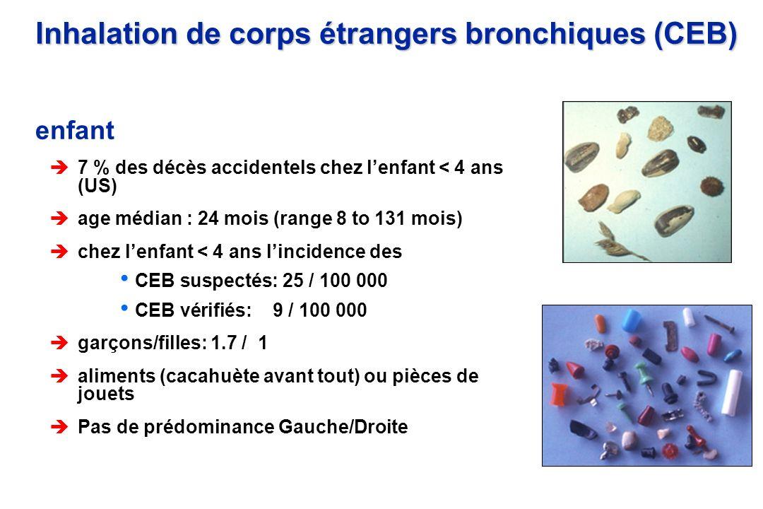 Inhalation de corps étrangers bronchiques (CEB) enfant è7 % des décès accidentels chez lenfant < 4 ans (US) èage médian : 24 mois (range 8 to 131 mois