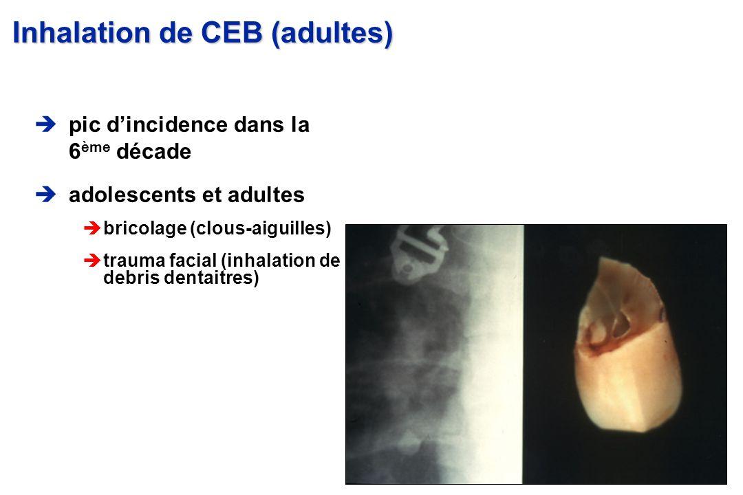 pic dincidence dans la 6 ème décade adolescents et adultes èbricolage (clous-aiguilles) ètrauma facial (inhalation de debris dentaitres) Inhalation de