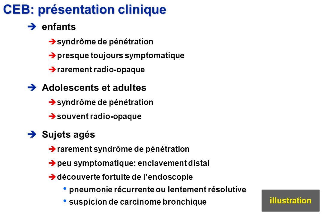 enfants èsyndrôme de pénétration èpresque toujours symptomatique èrarement radio-opaque Adolescents et adultes èsyndrôme de pénétration èsouvent radio