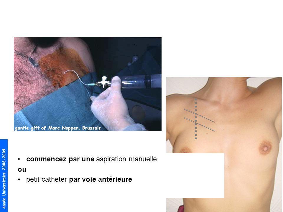 Année Universitaire 2008-2009 gentle gift of Marc Noppen. Brussels commencez par une aspiration manuelle ou petit catheter par voie antérieure