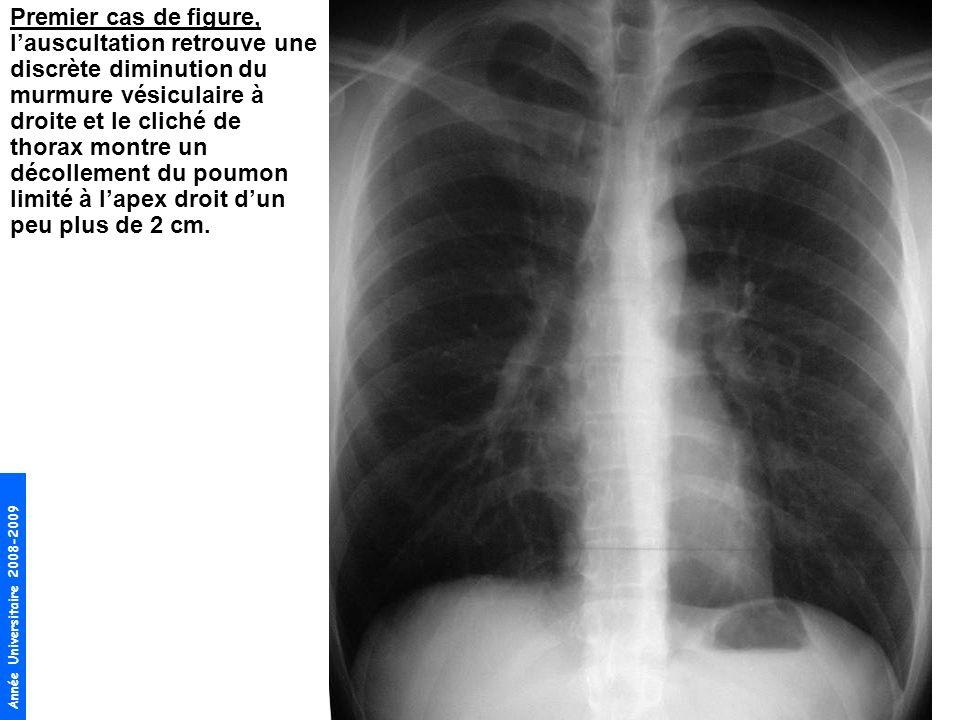 Année Universitaire 2008-2009 Deuxième cas de figure, lexamen retrouve un tympanisme et une abolition du murmure vésiculaire à droite.