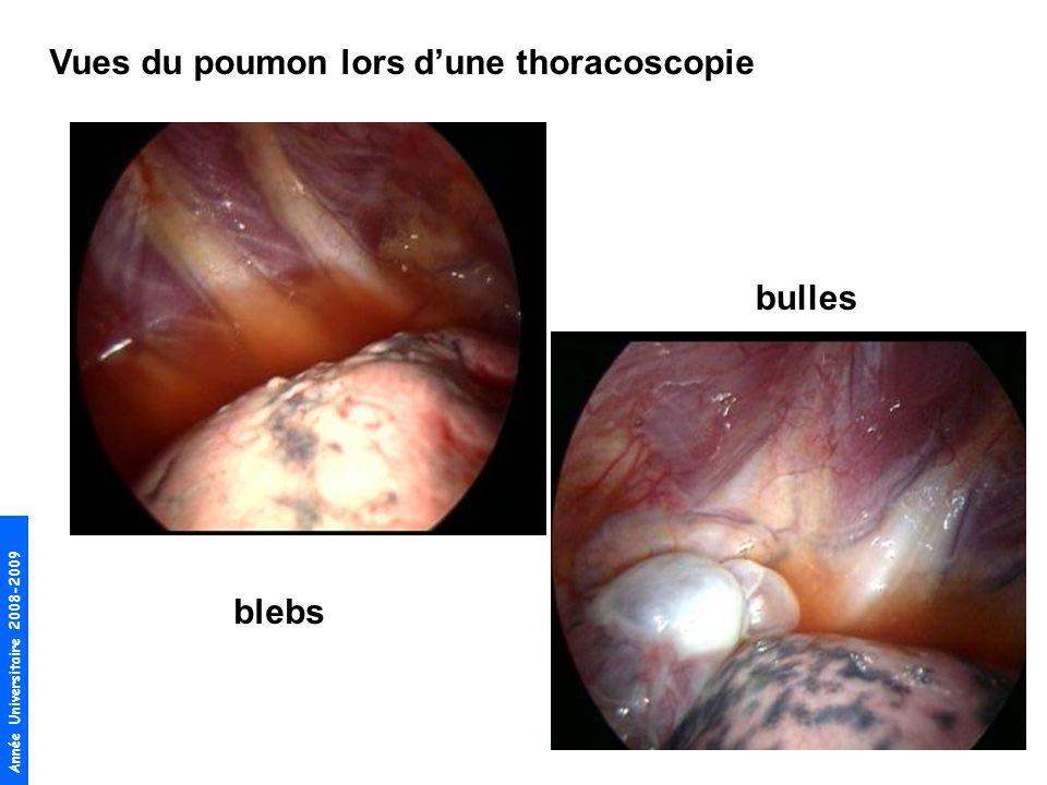 Année Universitaire 2008-2009 Vues du poumon lors dune thoracoscopie blebs bulles