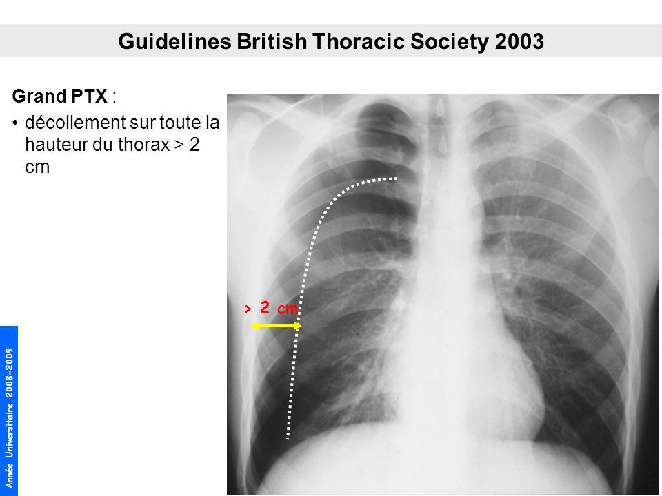 Année Universitaire 2008-2009 Grand PTX : décollement sur toute la hauteur du thorax > 2 cm Guidelines British Thoracic Society 2003 > 2 cm
