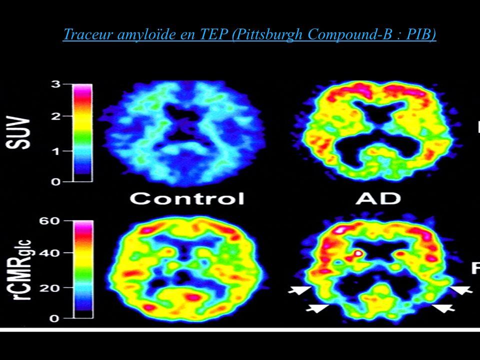 Klunk et al. 2004 Traceur amyloïde en TEP (Pittsburgh Compound-B : PIB)