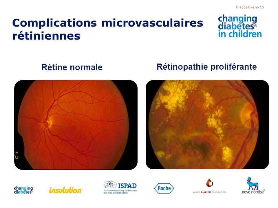 Diapositive no 13 Complications microvasculaires rétiniennes Rétine normale Rétinopathie proliférante