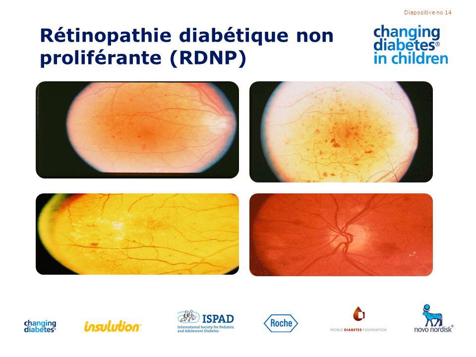 Diapositive no 14 Rétinopathie diabétique non proliférante (RDNP)