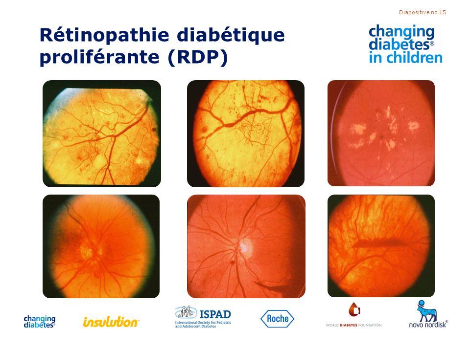 Diapositive no 15 Rétinopathie diabétique proliférante (RDP)
