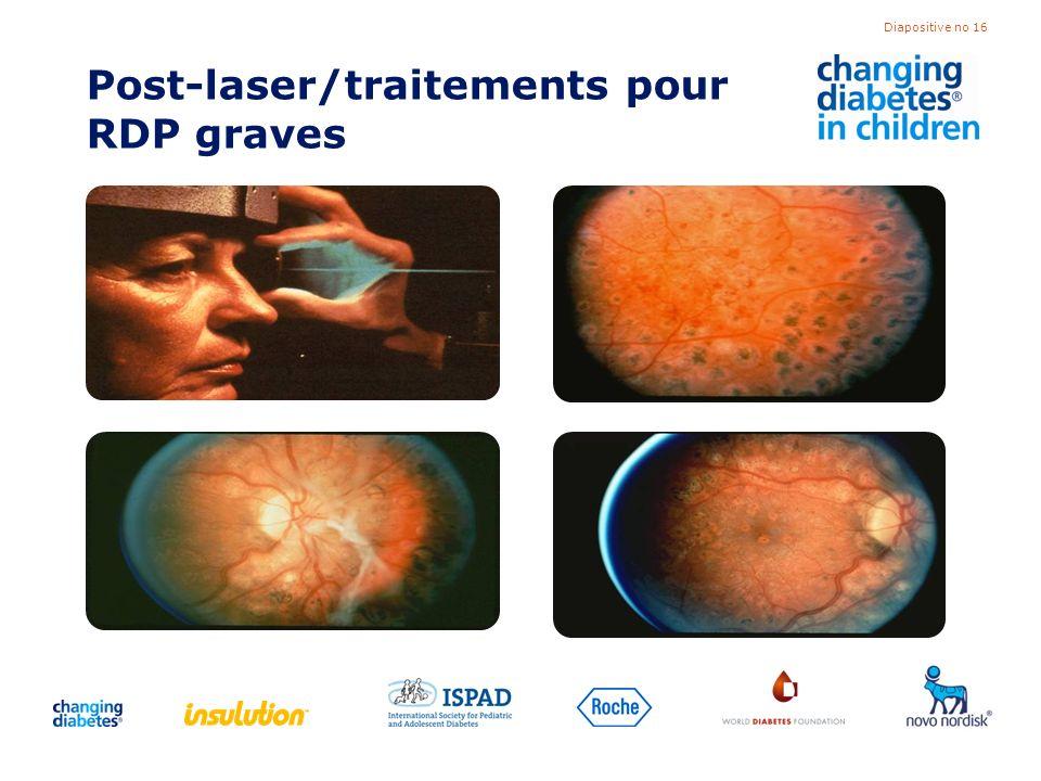 Diapositive no 16 Post-laser/traitements pour RDP graves