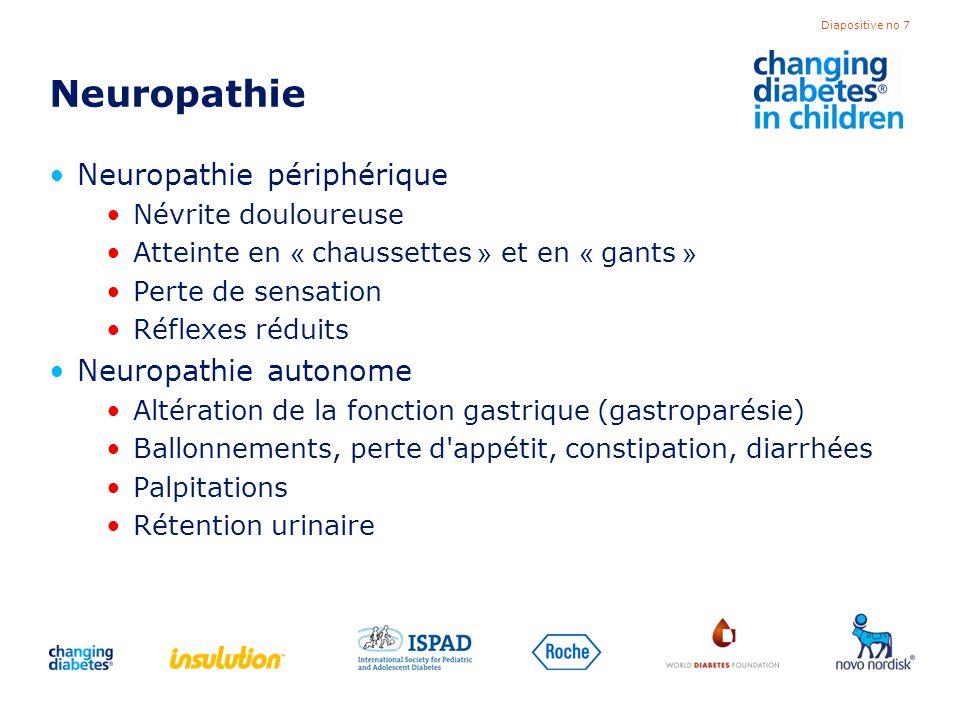 Diapositive no 7 Neuropathie Neuropathie périphérique Névrite douloureuse Atteinte en « chaussettes » et en « gants » Perte de sensation Réflexes rédu