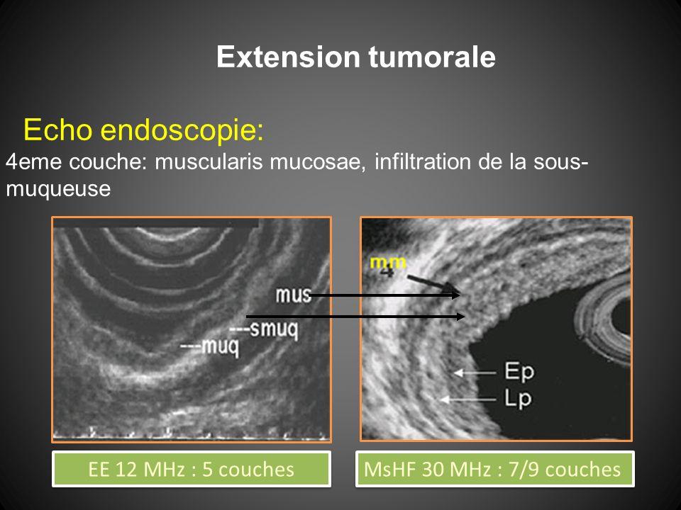 Extension tumorale Echo endoscopie: 4eme couche: muscularis mucosae, infiltration de la sous- muqueuse EE 12 MHz : 5 couches MsHF 30 MHz : 7/9 couches