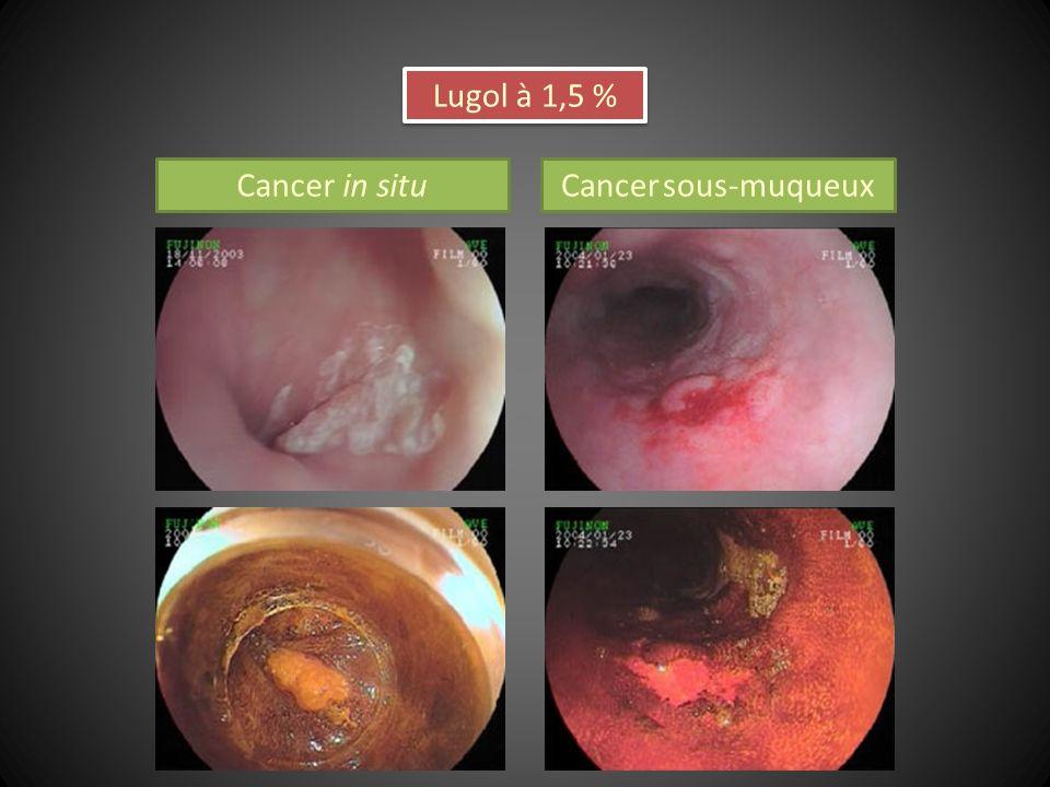 Cancer in situCancer sous-muqueux Lugol à 1,5 %