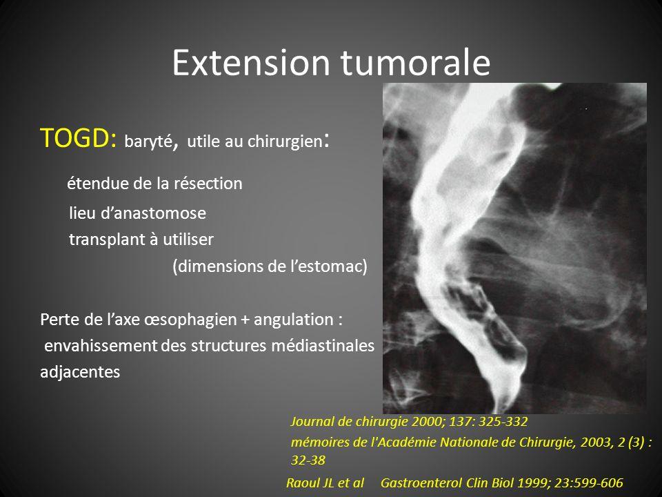 Extension tumorale TOGD: baryté, utile au chirurgien : étendue de la résection lieu danastomose transplant à utiliser (dimensions de lestomac) Perte d