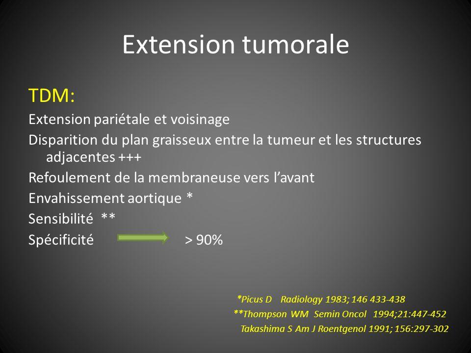 Extension tumorale TDM: Extension pariétale et voisinage Disparition du plan graisseux entre la tumeur et les structures adjacentes +++ Refoulement de