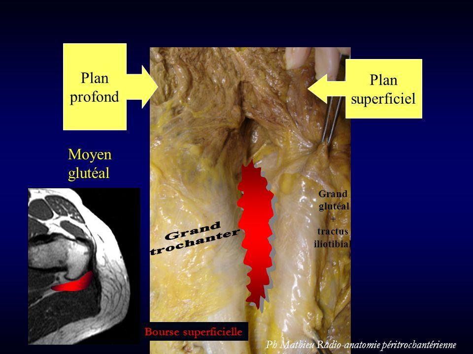 Plan profond Plan superficiel Moyen glutéal Grand glutéal + tractus iliotibial Bourse superficielle Ph Mathieu Radio-anatomie péritrochantérienne