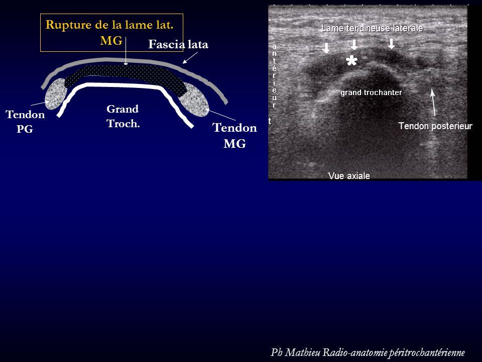Tendon PG Tendon MG Rupture de la lame lat. MG Fascia lata Grand Troch. Ph Mathieu Radio-anatomie péritrochantérienne