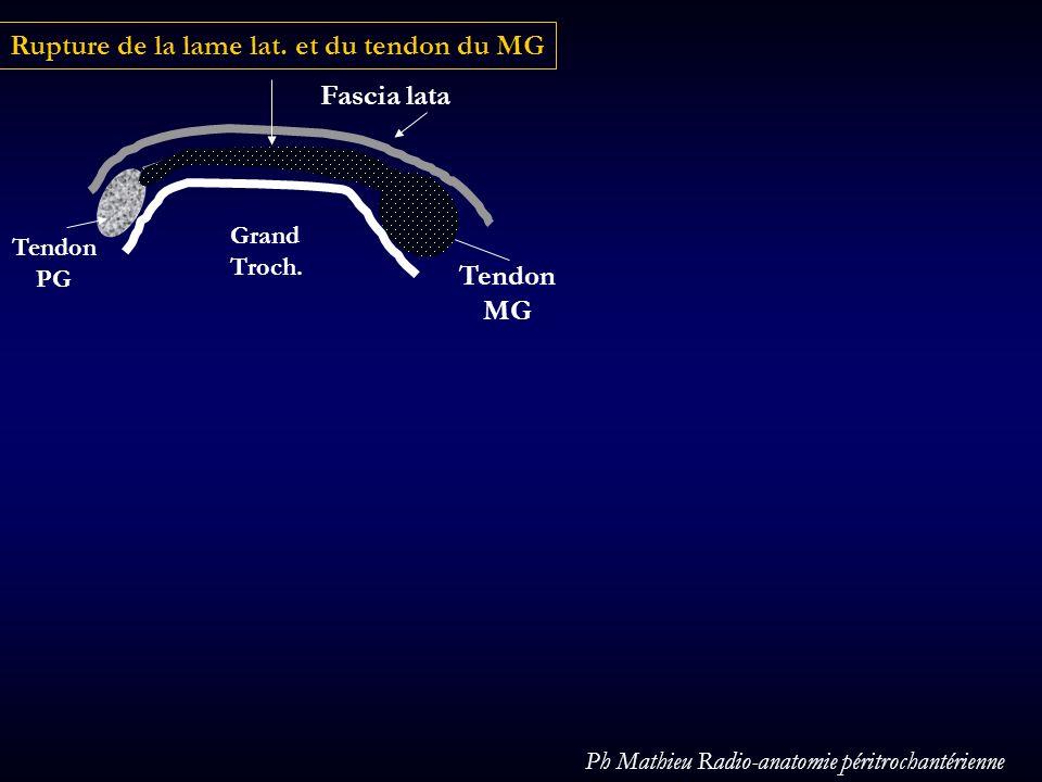 Tendon PG Tendon MG Rupture de la lame lat. et du tendon du MG Fascia lata Grand Troch. Ph Mathieu Radio-anatomie péritrochantérienne