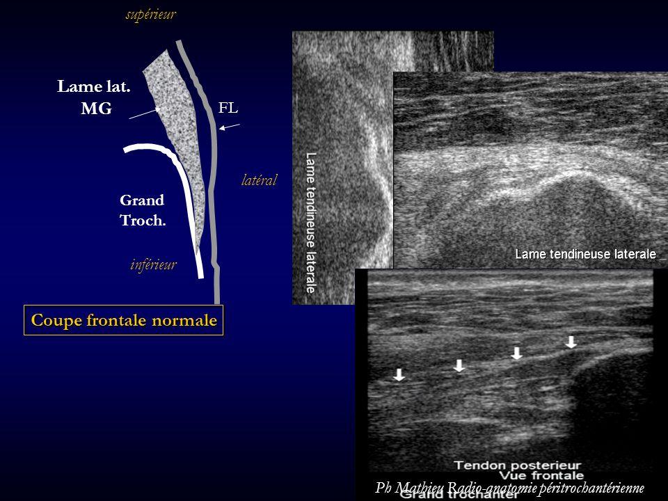Grand Troch. FL Lame lat. MG Coupe frontale normale latéral supérieur inférieur Ph Mathieu Radio-anatomie péritrochantérienne