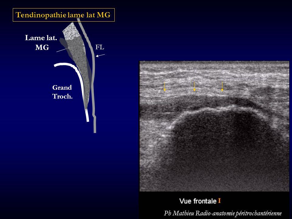 Grand Troch. FL Lame lat. MG Tendinopathie lame lat MG Ph Mathieu Radio-anatomie péritrochantérienne