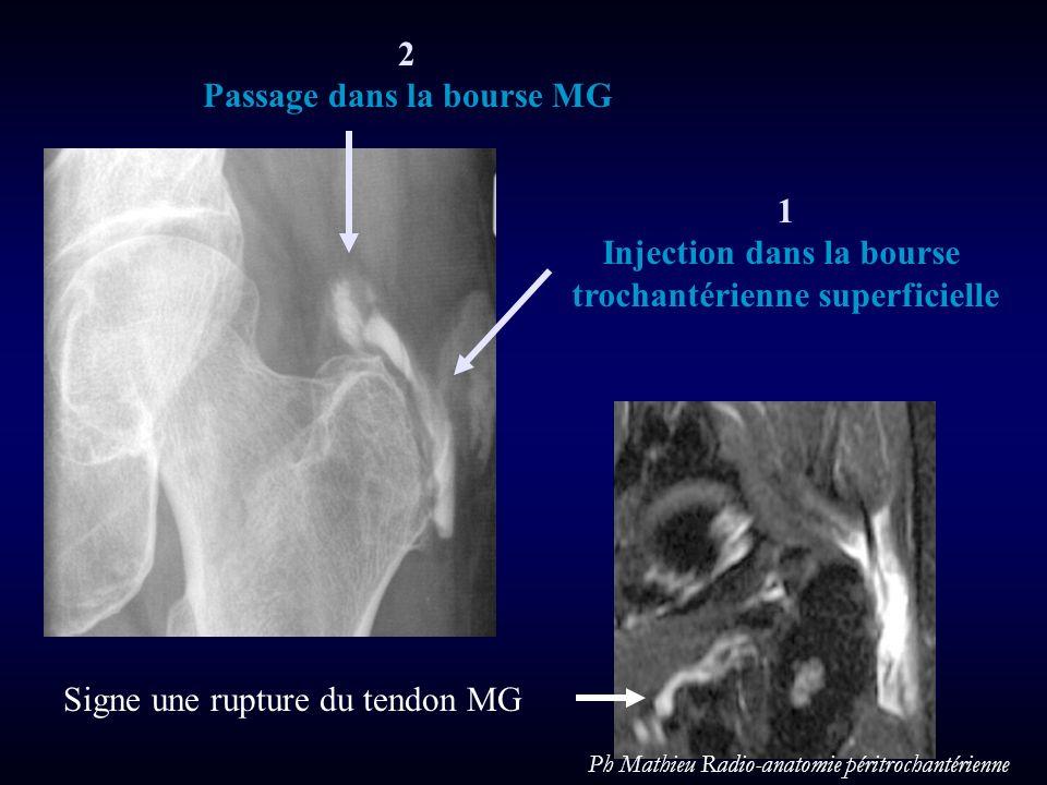 1 Injection dans la bourse trochantérienne superficielle Signe une rupture du tendon MG 2 Passage dans la bourse MG Ph Mathieu Radio-anatomie péritroc