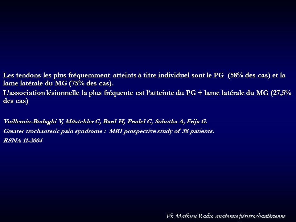 Les tendons les plus fréquemment atteints à titre individuel sont le PG (58% des cas) et la lame latérale du MG (75% des cas). Lassociation lésionnell
