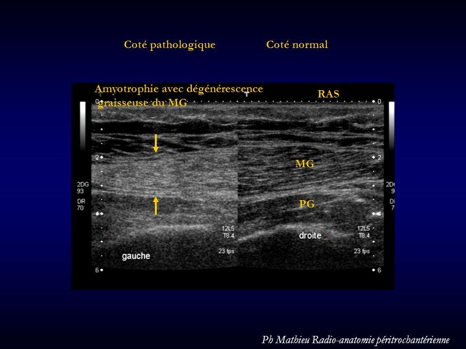Coté normalCoté pathologique MG PG Amyotrophie avec dégénérescence graisseuse du MG RAS Ph Mathieu Radio-anatomie péritrochantérienne