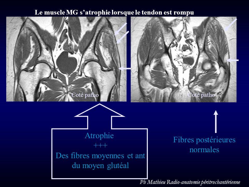 Atrophie +++ Des fibres moyennes et ant du moyen glutéal Fibres postérieures normales Coté patho Le muscle MG satrophie lorsque le tendon est rompu Ph