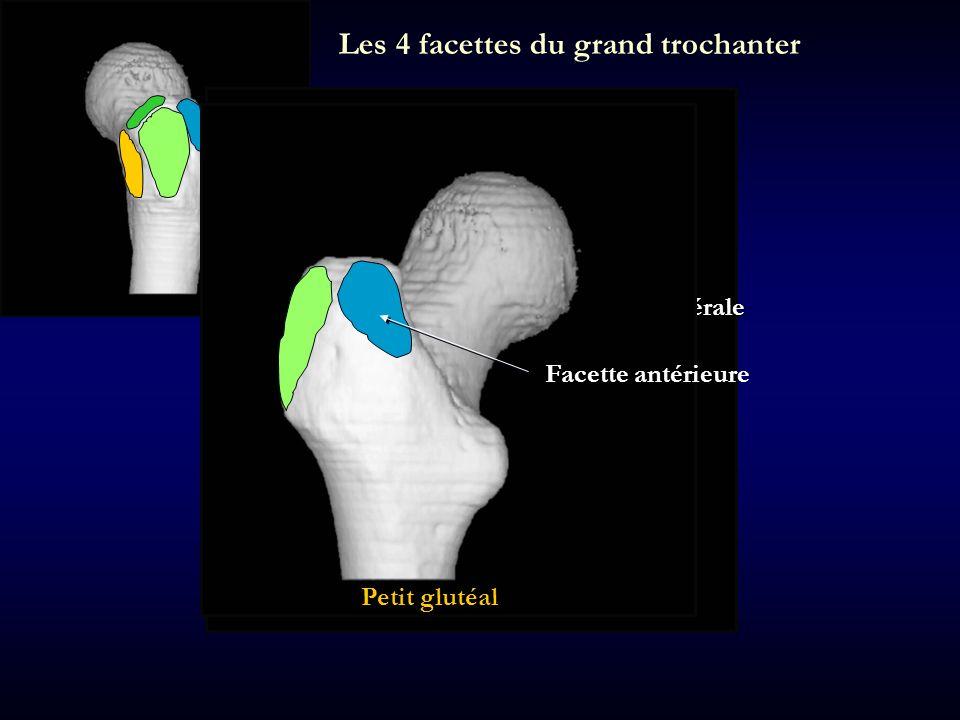 Les 4 facettes du grand trochanter Facette postérieure Aucune insertion Facette latérale Facette postéro-supérieure Moyen glutéal Facette antérieure P