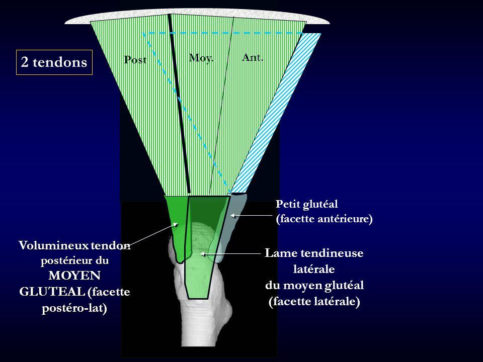 Post Moy Ant Volumineux tendon postérieur du MOYEN GLUTEAL (facette postéro-lat) Lame tendineuse latérale du moyen glutéal (facette latérale) Post. Mo