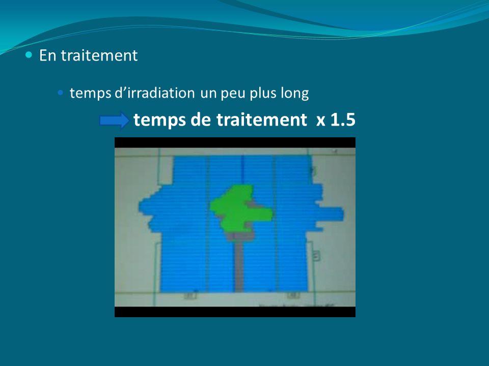 En traitement temps dirradiation un peu plus long temps de traitement x 1.5
