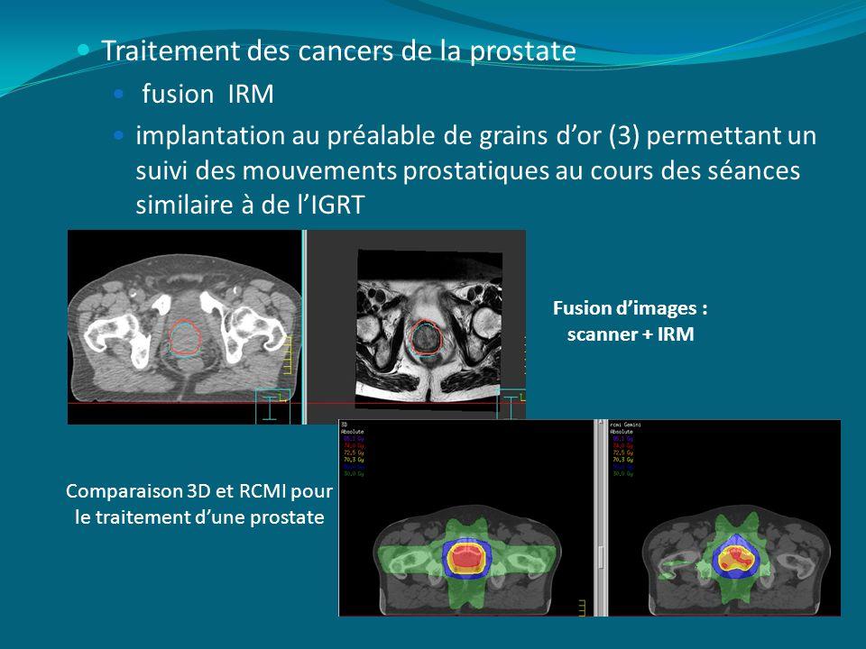 Traitement des cancers de la prostate fusion IRM implantation au préalable de grains dor (3) permettant un suivi des mouvements prostatiques au cours