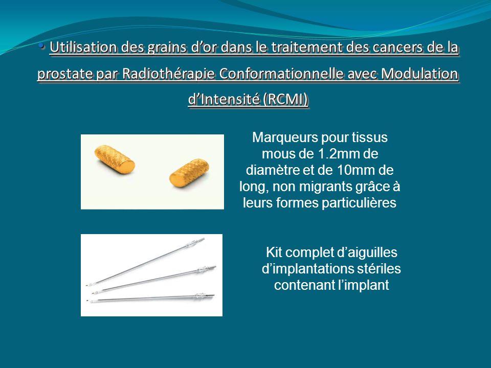 Utilisation des grains dor dans le traitement des cancers de la prostate par Radiothérapie Conformationnelle avec Modulation dIntensité (RCMI) Utilisa