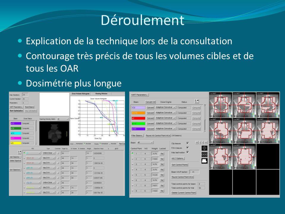 Déroulement Explication de la technique lors de la consultation Contourage très précis de tous les volumes cibles et de tous les OAR Dosimétrie plus l