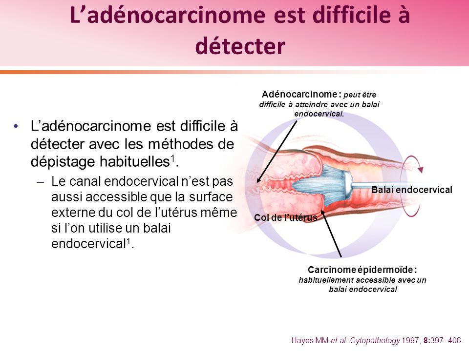 Ladénocarcinome est difficile à détecter avec les méthodes de dépistage habituelles 1. –Le canal endocervical nest pas aussi accessible que la surface