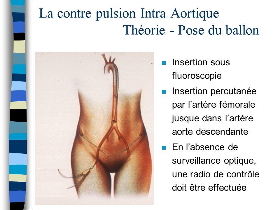 n Insertion sous fluoroscopie n Insertion percutanée par lartère fémorale jusque dans lartère aorte descendante n En labsence de surveillance optique,
