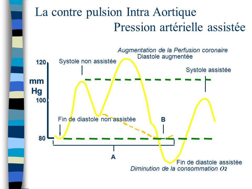 La contre pulsion Intra Aortique Pression artérielle assistée mmHg Systole non assistée Diastole augmentée A B Fin de diastole assistée 120 100 80 Fin