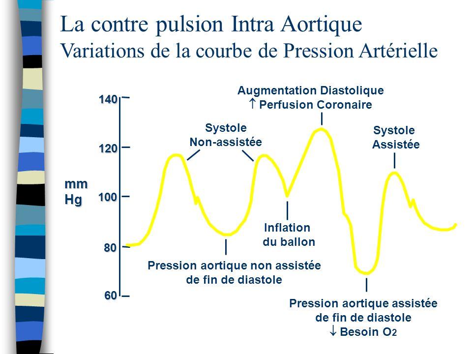 La contre pulsion Intra Aortique Variations de la courbe de Pression Artérielle Augmentation Diastolique Perfusion Coronaire Pression aortique assisté