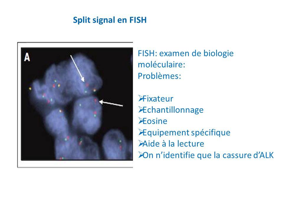 Split signal en FISH FISH: examen de biologie moléculaire: Problèmes: Fixateur Echantillonnage Eosine Equipement spécifique Aide à la lecture On niden