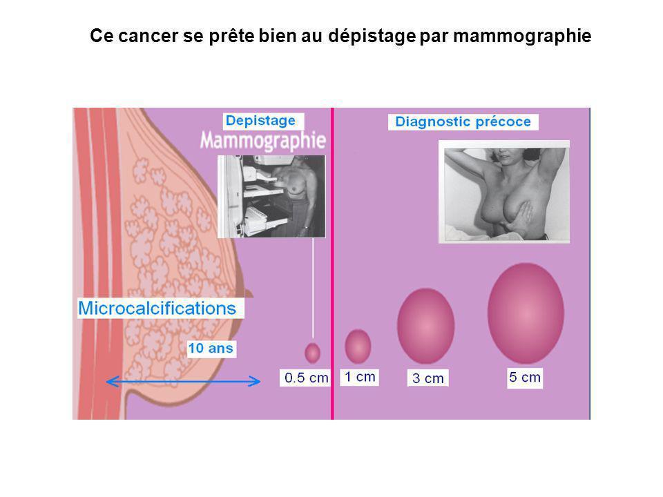 Ce cancer se prête bien au dépistage par mammographie