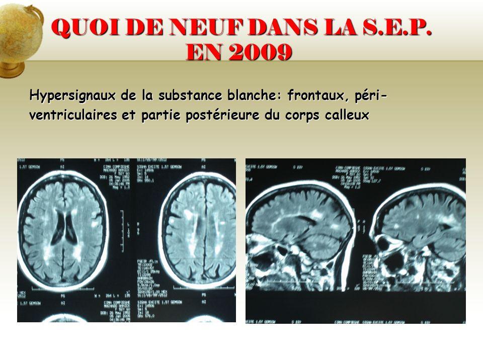 QUOI DE NEUF DANS LA S.E.P. EN 2009 QUOI DE NEUF DANS LA S.E.P. EN 2009 Hypersignaux de la substance blanche: frontaux, péri- ventriculaires et partie