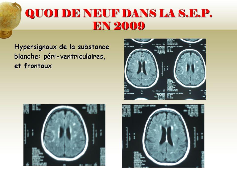 QUOI DE NEUF DANS LA S.E.P. EN 2009 Hypersignaux de la substance blanche: péri-ventriculaires, et frontaux