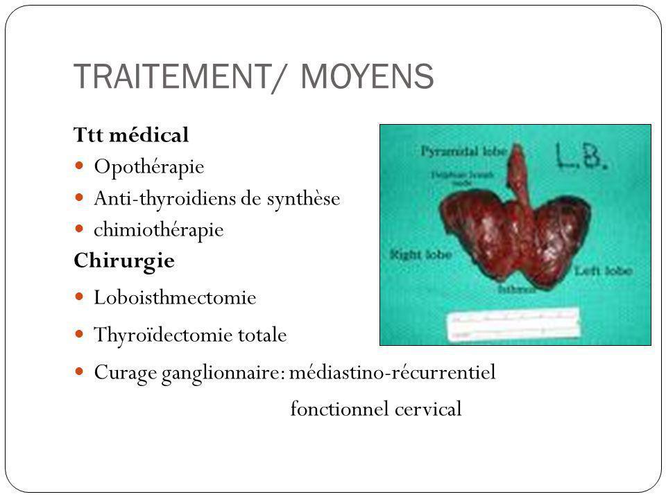 TRAITEMENT/ MOYENS Ttt médical Opothérapie Anti-thyroidiens de synthèse chimiothérapie Chirurgie Loboisthmectomie Thyroïdectomie totale Curage ganglio