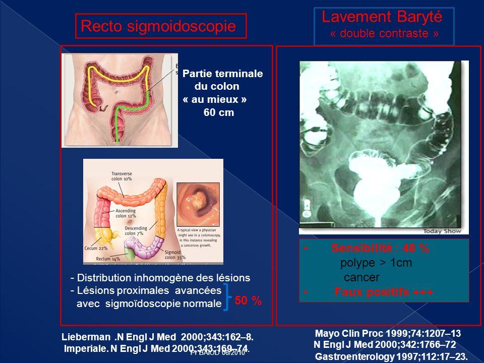 Recto sigmoidoscopie Partie terminale du colon « au mieux » 60 cm - Distribution inhomogène des lésions - Lésions proximales avancées avec sigmoïdosco